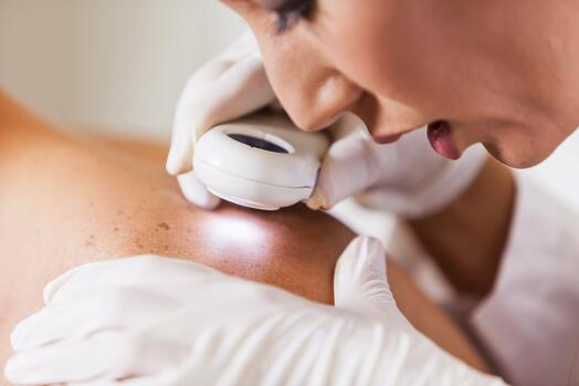 Corporate skin checks by National Skin Cancer Centres