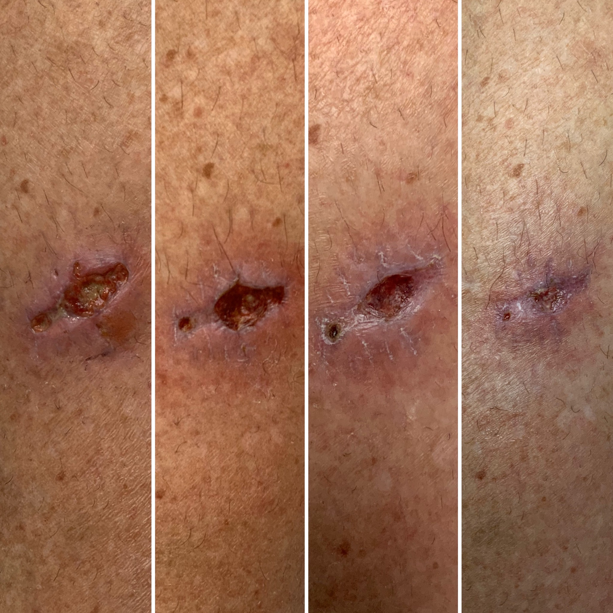 First two pics were taken on the same day before and after LED (week 1)- Pic 3 is week 2- Pic 4 is week3- The patient was treated for 3 weeks, twice per week- (1)-JPG