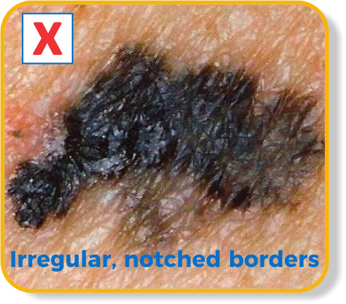Irregular borders