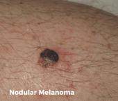 Nodular melanoma