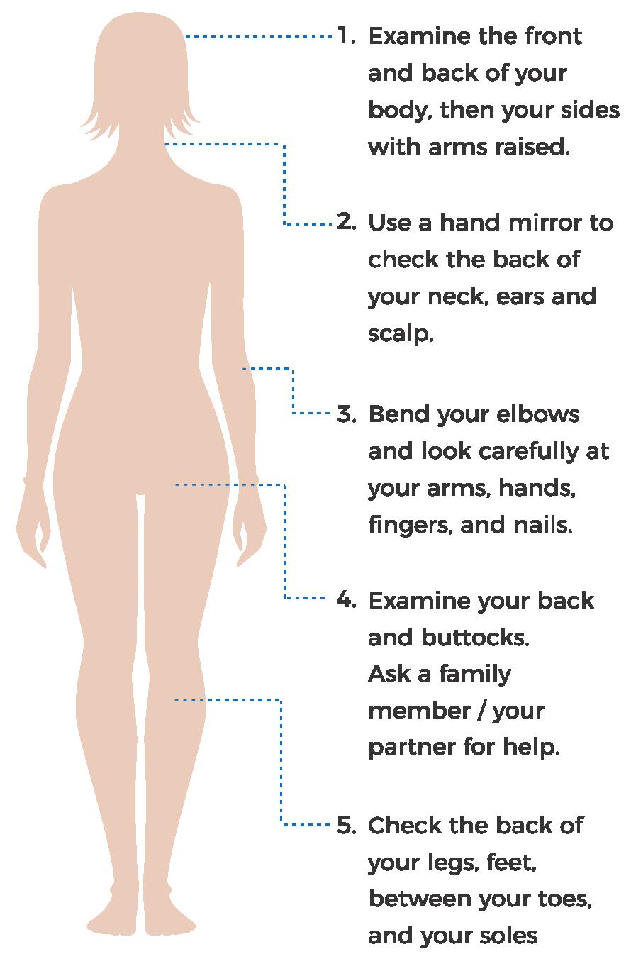 Self skin examination