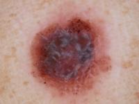 Nodular Melanoma - 2