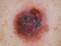 Nodular Melanoma-1