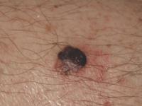 Nodular melanoma (1)-1-1