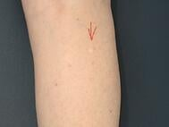Wide Shot Lesion Marked (1)