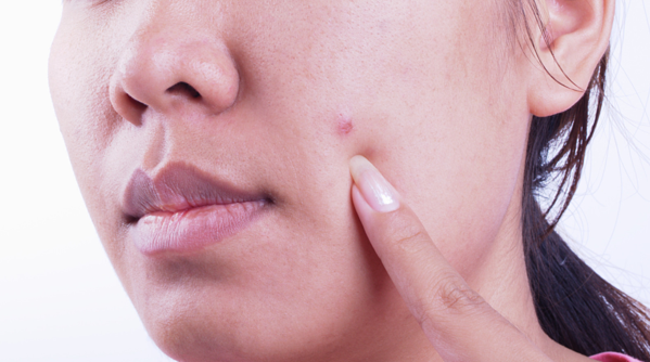 Can Skin Cancer Look Like A Pimple