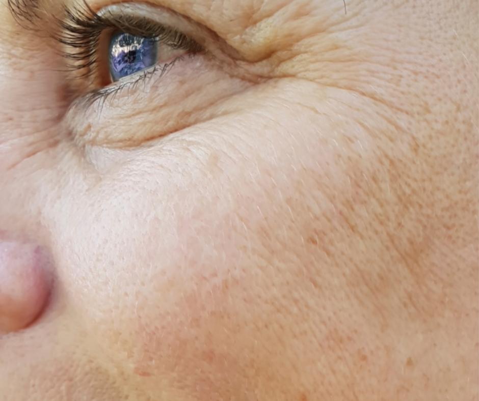 hyperpigmentation skin